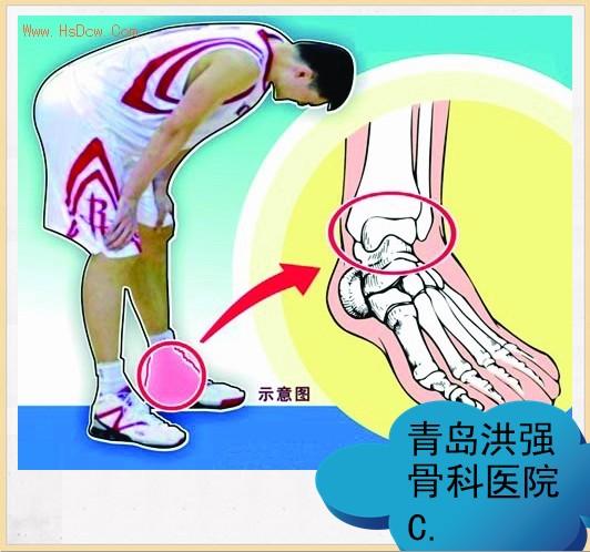 膝关节损伤的相关知识---从姚明胫骨裂纹骨折谈起